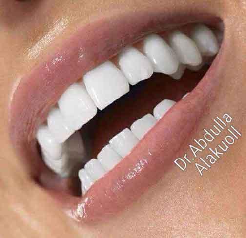 د. عبدالله فارس العكل لتقويم وتجميل الأسنان   دمشق